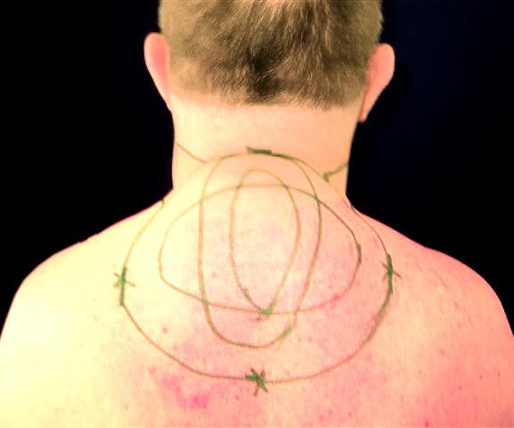 Fettabsaugung / Liposuktion an Hals, Nacken | Dr. med. Martin ...