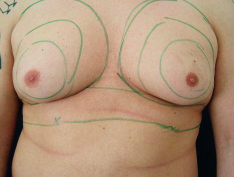 Wie die Brust auf einen Umfang wenn dir 14 Jahre zu vergrössern