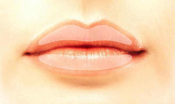 besonderheiten im aufspritzen der lippen dr med martin zoppelt z rich. Black Bedroom Furniture Sets. Home Design Ideas